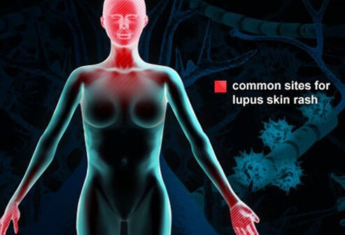 Common lupus rash sites on the body.