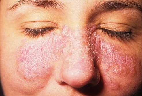 Photo of butterfly rash caused by lupus.