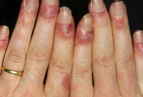 Photo of lupus rash on nails.