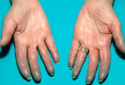 Photo of Raynaud's phenomenon caused by lupus.
