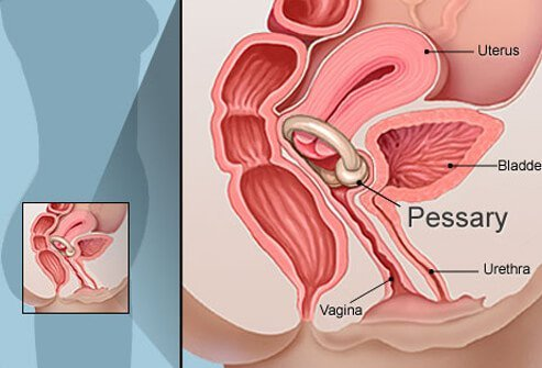 Illustration of a pessary device used to help reduce urinary leakage.