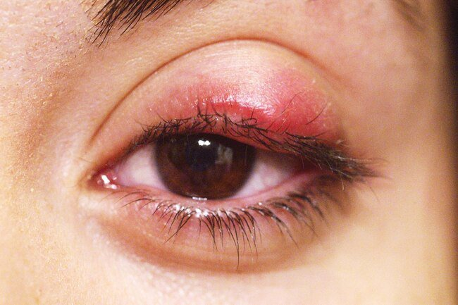 A chalazion is a lump that forms when a meibomian gland of the eyelid gets blocked.