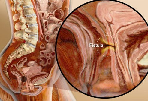 Illustration of a fistula in the digestive system between the intestine and bladder.
