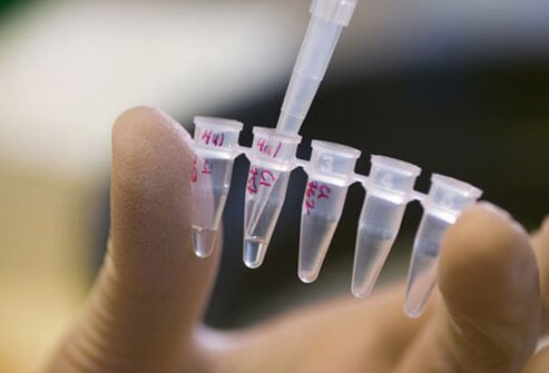 A photo of DNA lab testing.