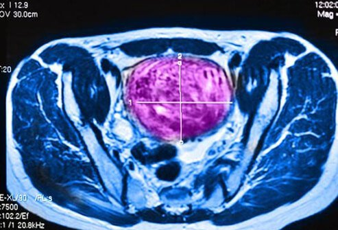 MRI-guided ultrasound can sometimes be provided inside your doctor's office.