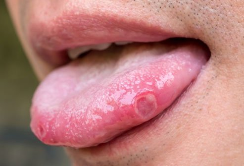 Lack of B12 can cause mouth sores.