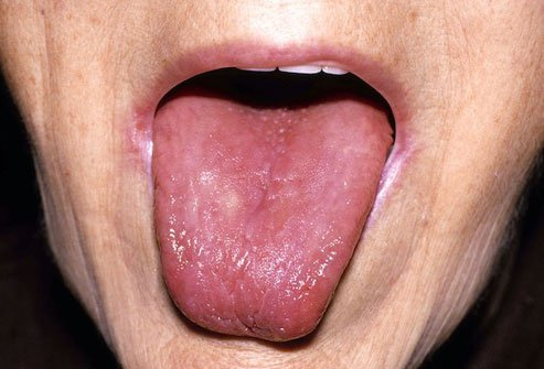 Inadequate B12 levels may lead to a smooth, sore tongue.