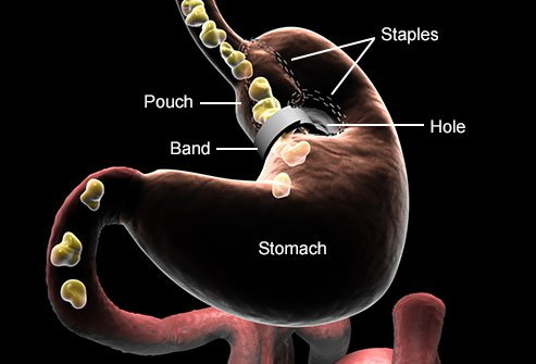 Stomach stapling is considered old-fashioned.