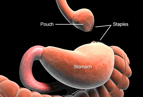 You get a new stomach as a result of gastric bypass surgery.