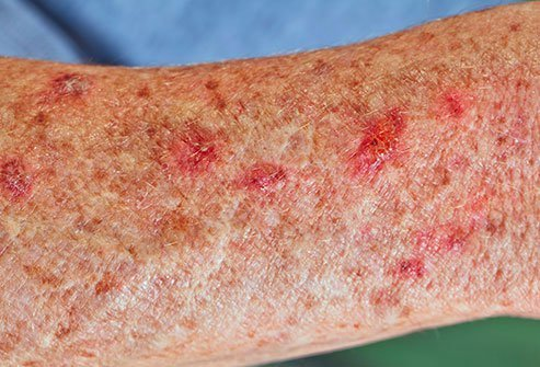 Ultraviolet light from the sun or from a manmade source like a tanning bed causes these raised, crusty growths.