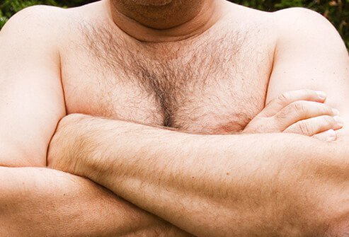 Photo of a man hiding his overdeveloped breasts.