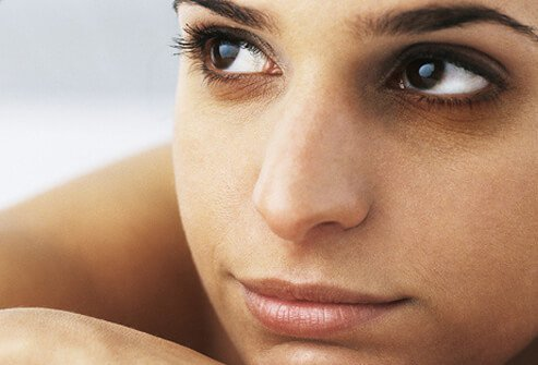 Photo of a woman with dark circles around her eyes.