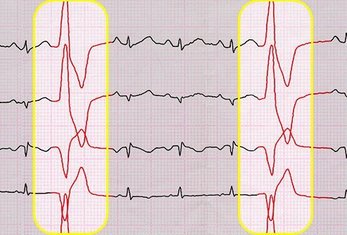 PVCs happen when your heart's ventricles squeeze too soon.