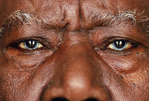 Eyes that contain multiple colors may be a sign of Waardenburg syndrome.