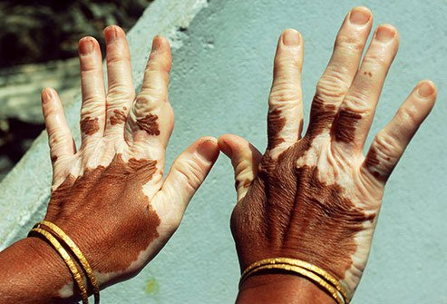 Vitiligo is a condition that creates loss of pigment in patches on the skin.