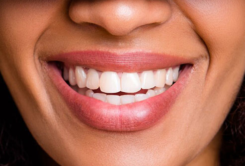 Caffeinated drinks often stain your teeth and dry out your mouth.