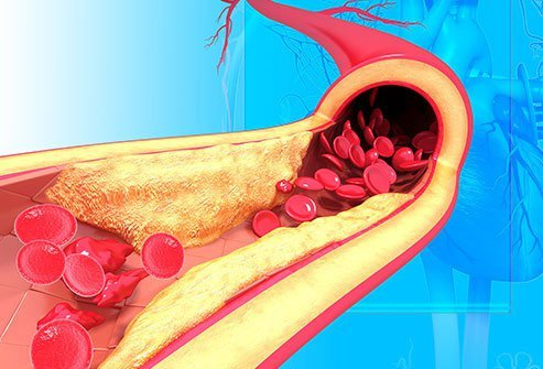 High blood pressure, or HBP, pushes too hard on your artery walls.