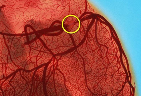 CAD happens when plaque builds up in arteries close to your heart.