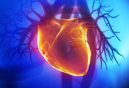 High blood pressure can cause your arteries to narrow.