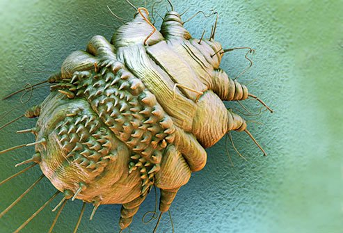 A mite that digs into your body and lays eggs causes this condition.