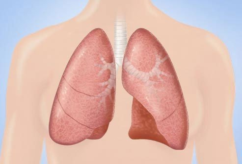 Breast cancer can spread to the lungs or to the space between the lung and the chest wall, making fluid build up around the lung.