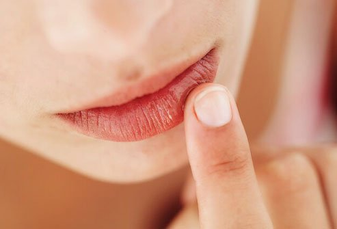 Dry mouth happens when your salivary glands aren't putting out enough saliva to wet your mouth properly.