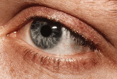 This condition makes your eyelids swell, usually near the eyelashes.