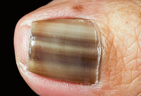 The term for brown and sometimes black color on your toenail is melanonychia.