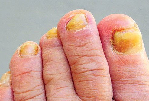 When toenails turn yellow, a fungus is usually to blame.