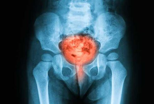 Interstitial cystitis causes painful and uncomfortable bladder symptoms as well as the urge to pee.