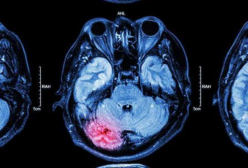 A stroke or other brain condition may lead to increased urination.