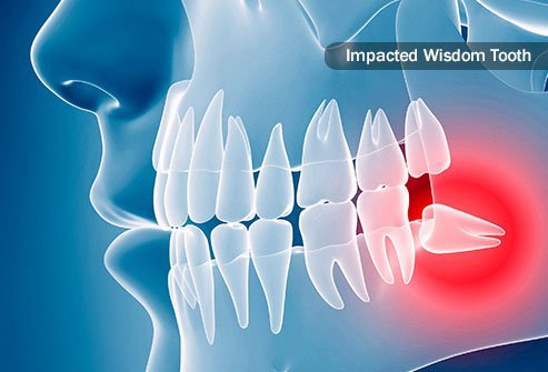 When teeth don't fully emerge from your gum line, they are considered impacted.