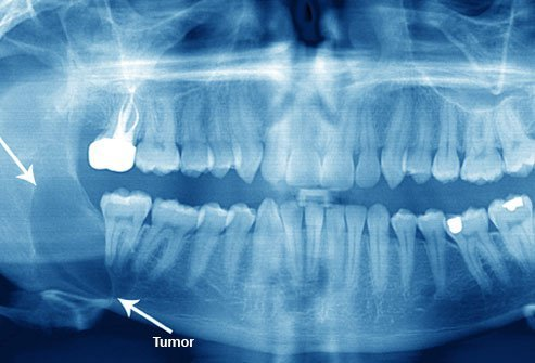 Cysts and tumors can result from impacted wisdom teeth (see area between arrows for cyst).
