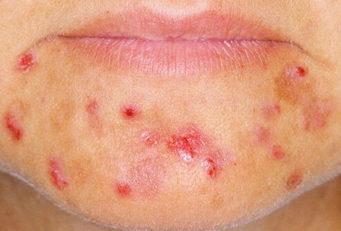 PCOS causes acne, hair loss, and other symptoms.