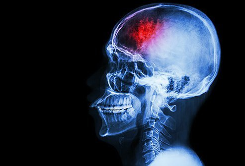 Facial paralysis is sometimes caused by stroke, a serious medical emergency.