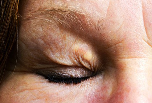 Tiny raised bumps on the eyelids may be cholesterol deposits.
