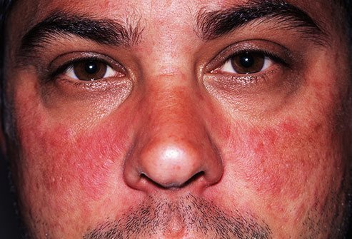 Butterfly rashes across the cheeks are a signature symptom of lupus.