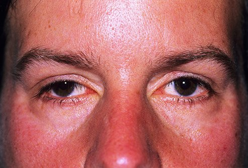 Drooping eyelids are known as ptosis, and can be corrected with surgery.